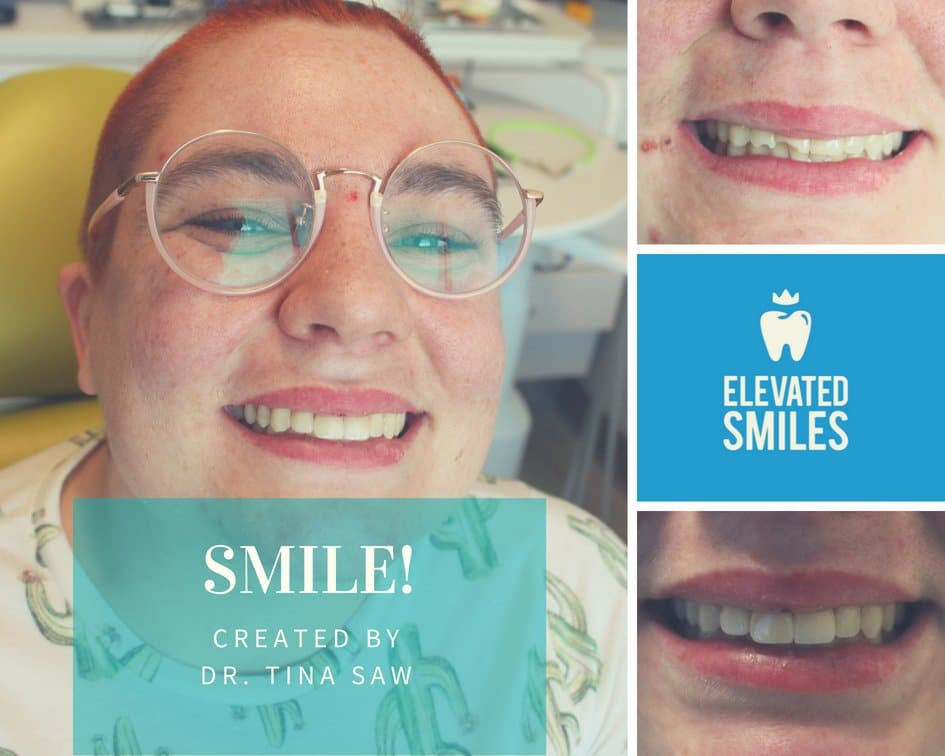 A patients before and after comparison from Dr. Tina Saw of Elevated Smiles