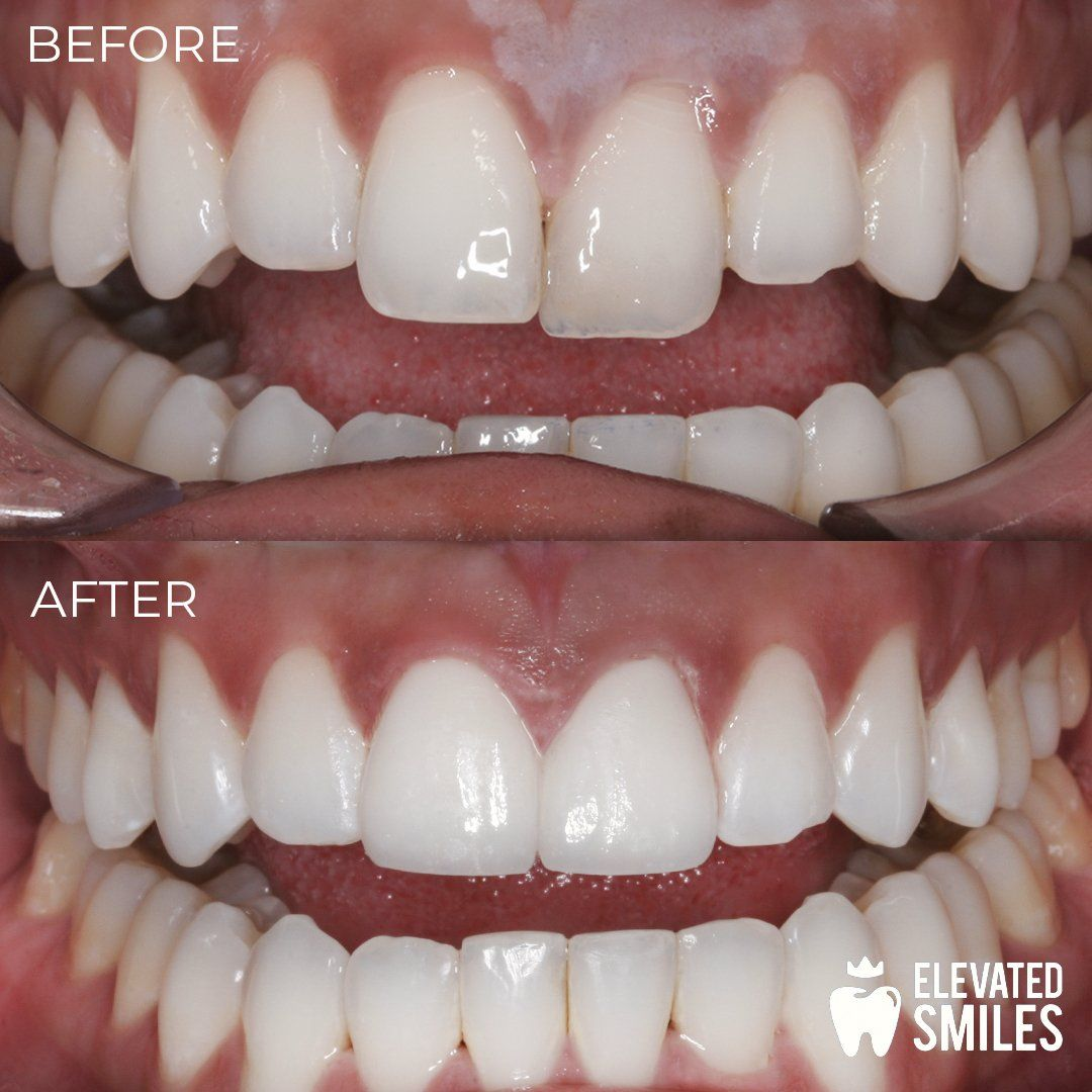 Before and After comparison of dental work completed by Carlsbad dentist Dr. Thanh Luu