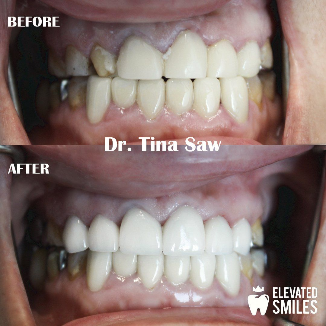 Before and After comparison of dental work completed by Dr. Tina Saw