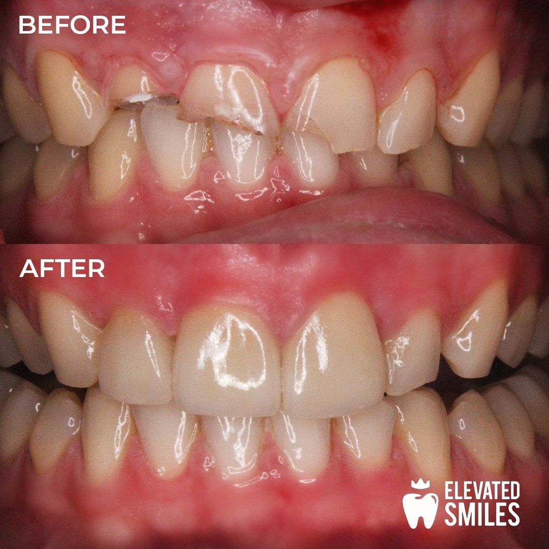Before and After comparison of dental work completed by the Carlsbad dentists at Elevated Smiles
