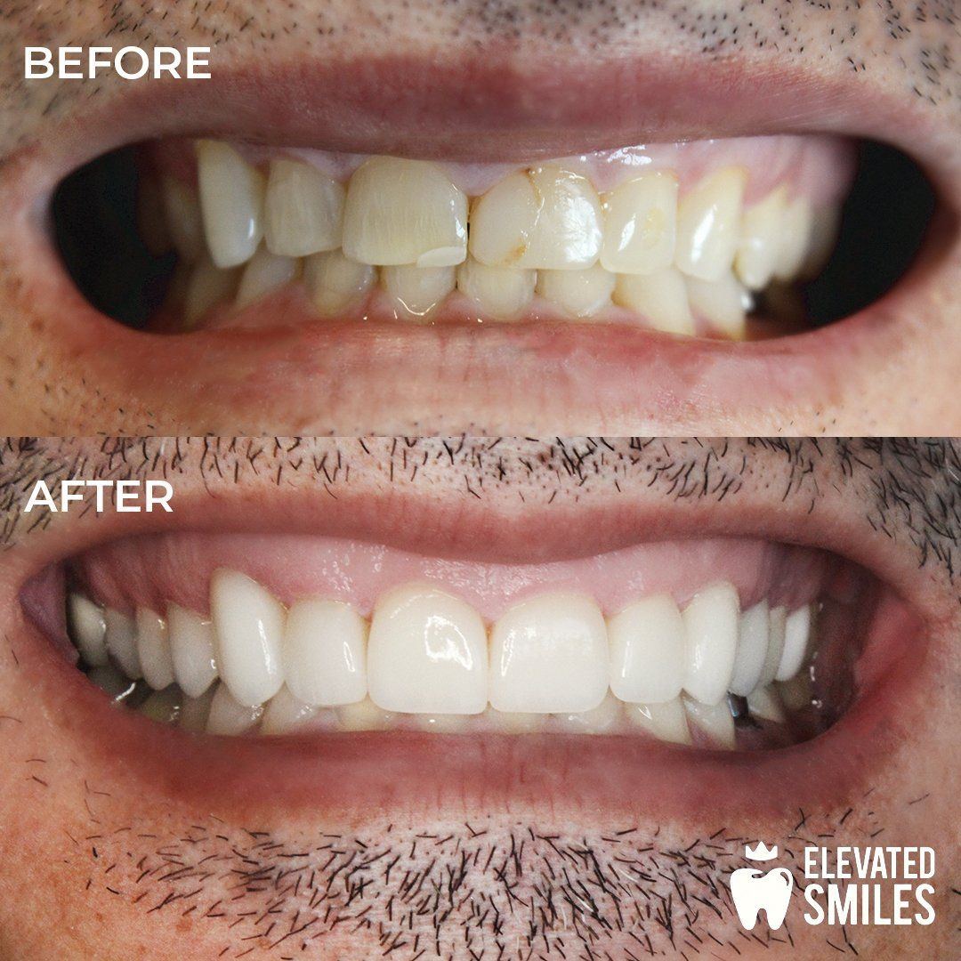 Before and After comparison of dental work completed by the Carlsbad cosmetic dentists at Elevated Smiles