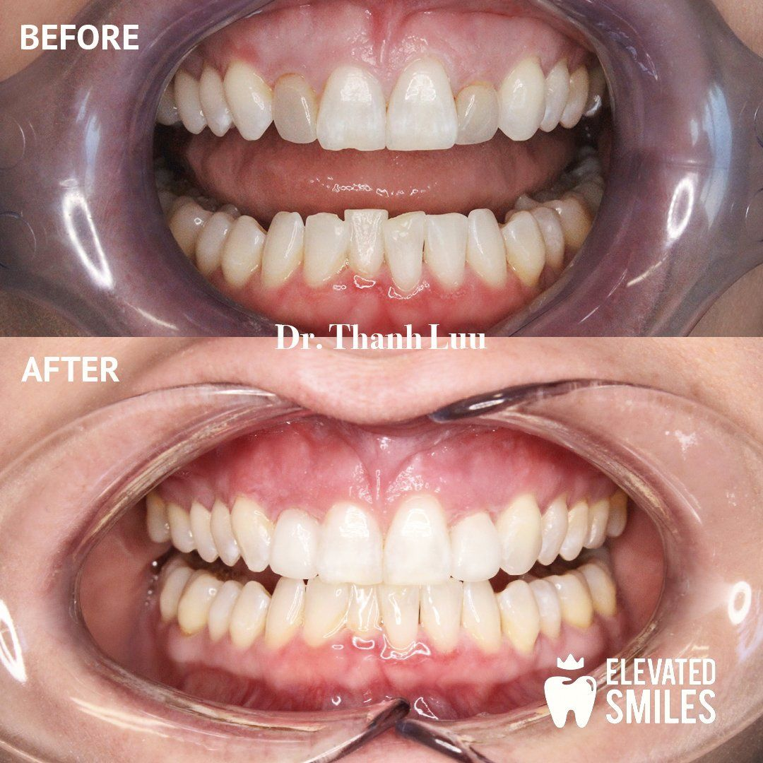 Before and After comparison of dental work completed by Dr. Thanh Luu