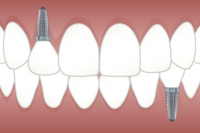 illustration of dental implants into a jaw