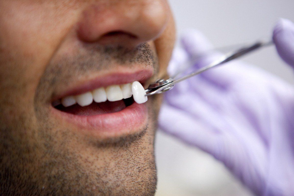 A dentist holding a color matching tooth example next to a patients smile